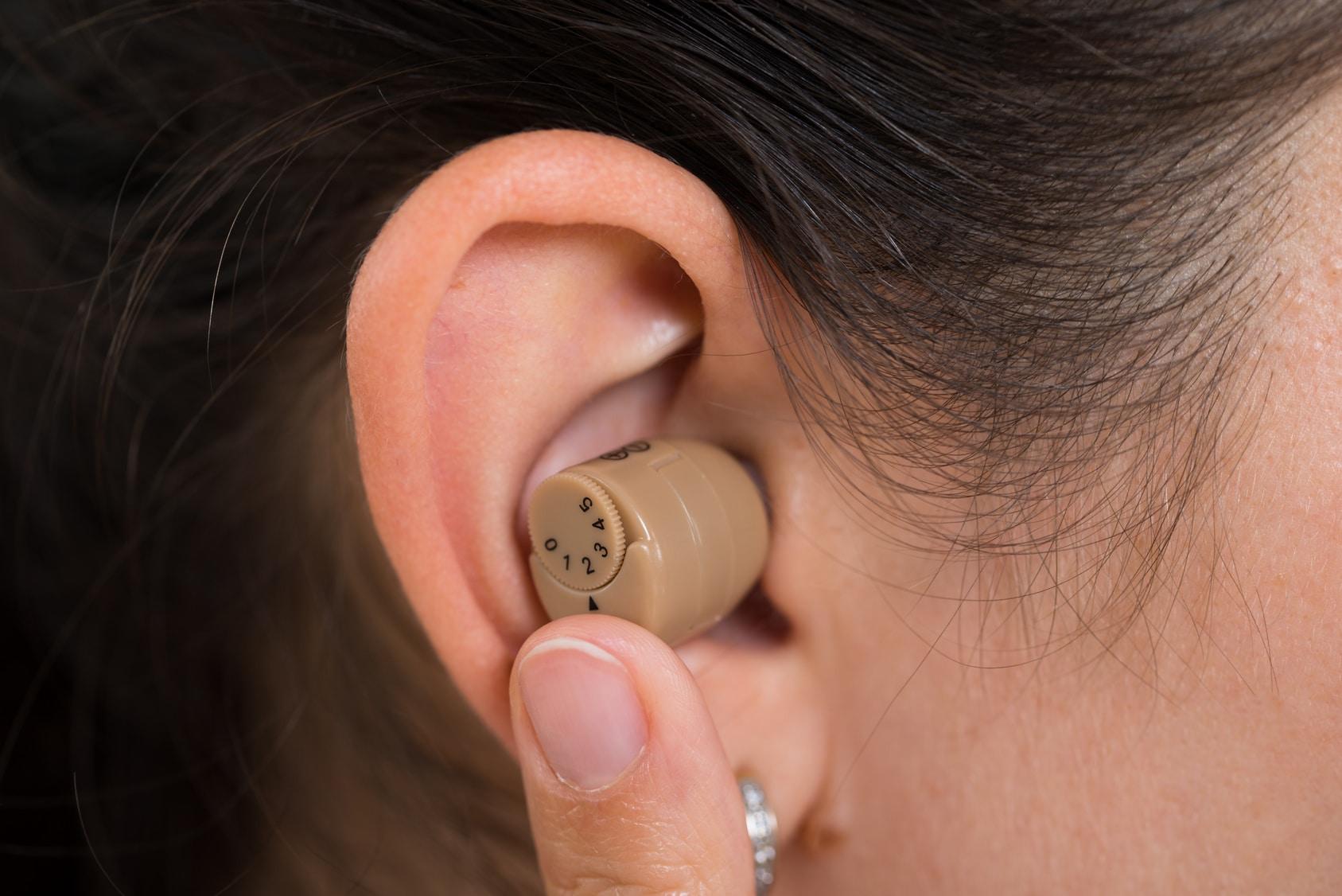 Aperçu d'un appareil auditif intra-auriculaire