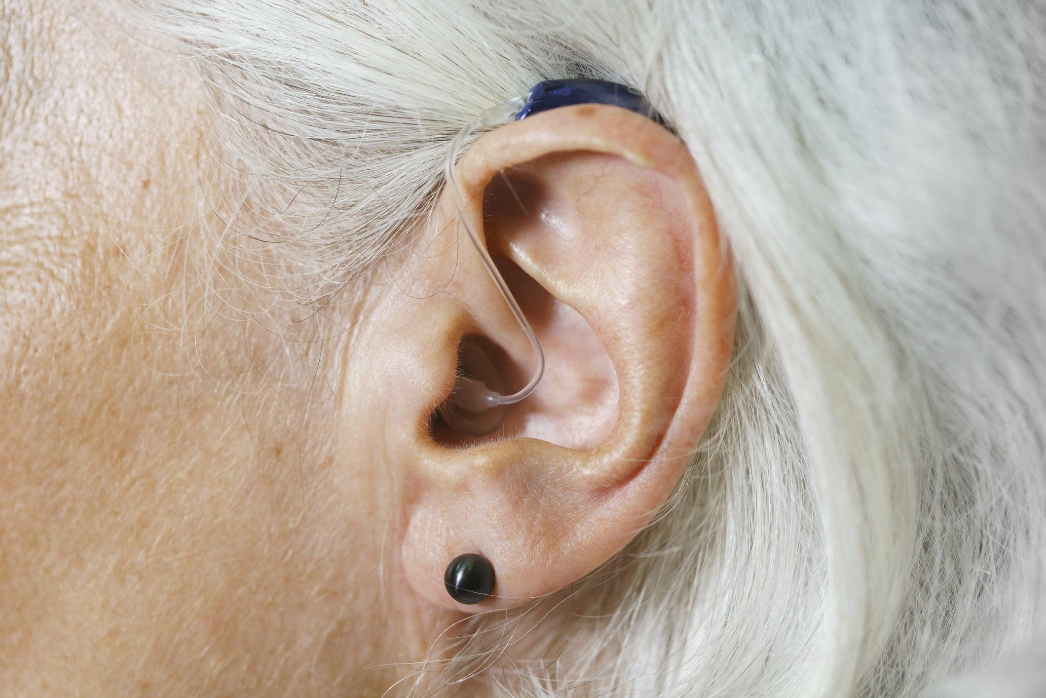 Un appareil auditif pour une personne âgée